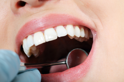 The Purpose of Dental Sealants and Its Application – Washington, DC